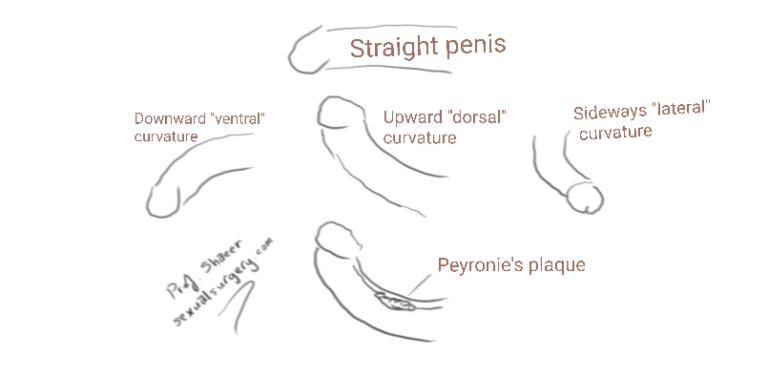 Read more about the article Penile Curvature-Penile Deviation FAQ
