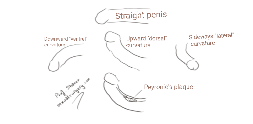 Penile Curvature-Penile Deviation FAQ